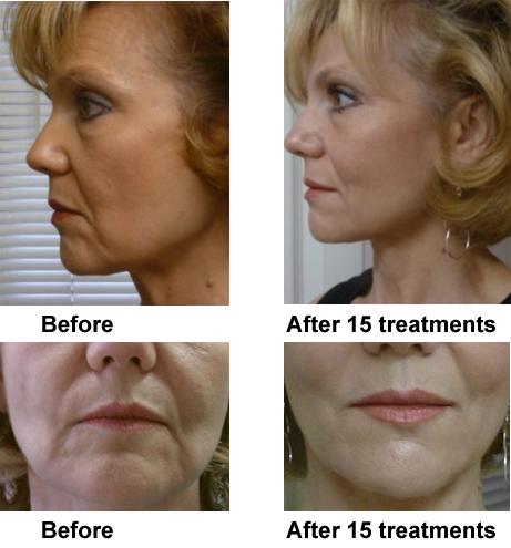 Micro current facial rejuvenation